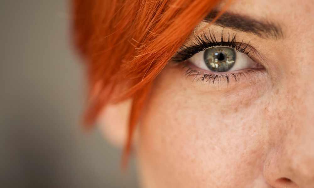 badem göz estetiği ameliyatı sonucu
