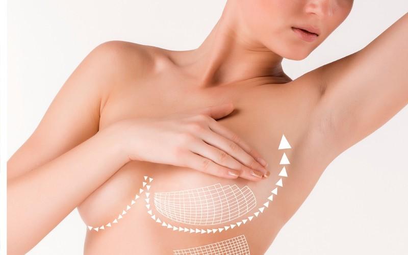 Doğum Sonrası Karın Germe Ameliyatı 3