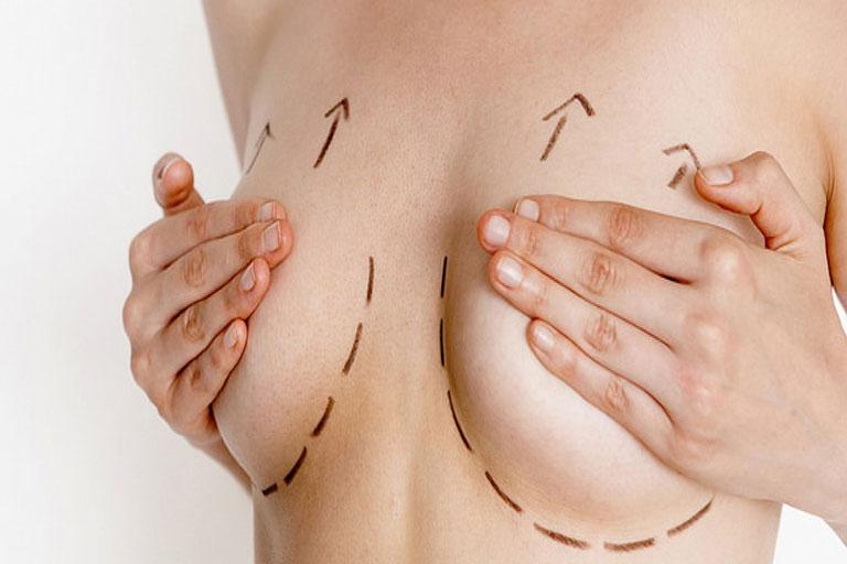 Sarkmış Göğüsler İçin Estetik Ameliyat 4