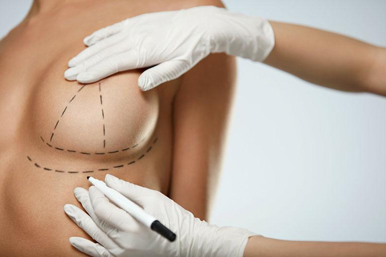 Göğüsleri Doğum Öncesi Zamana Döndürmek 1