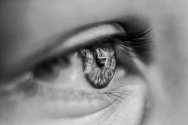 Ameliyatsız Badem Göz Estetiği 1