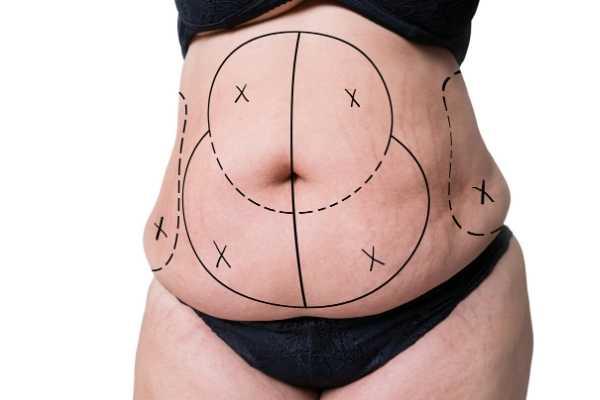 vaser liposuction yağ aldırma öncesi