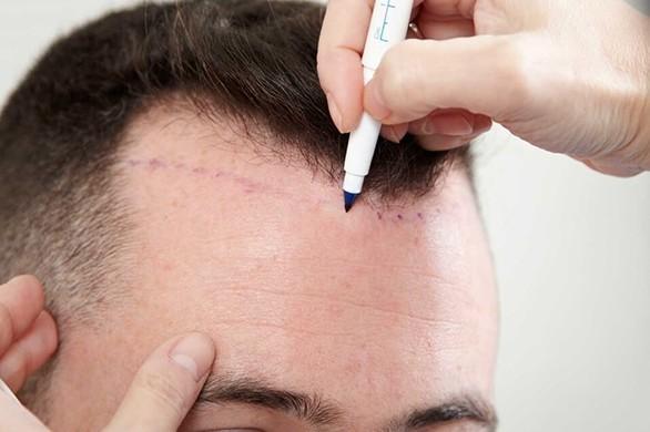 FUE ile Saç Ekimi 1
