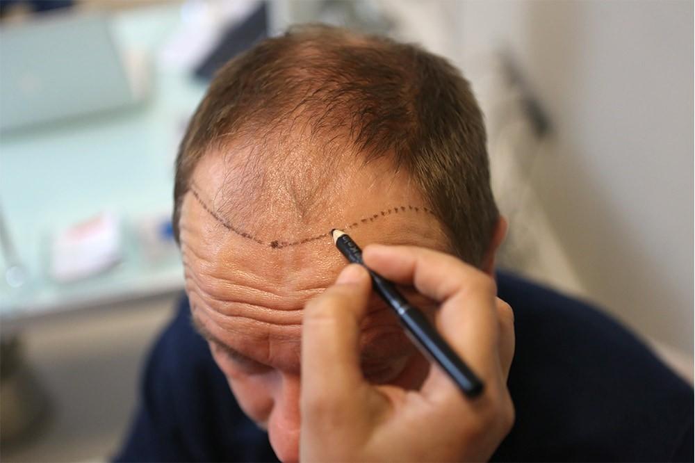 Tıraşsız saç ekimi 1