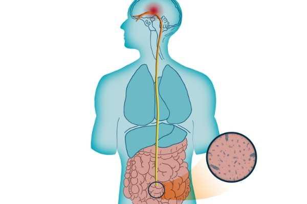 Migren Cerrahisi Migrene Gerçekten Çare Olabilir Mi? 7