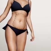 Liposuction Korsesi Ne Kadar Süre Kullanılır_