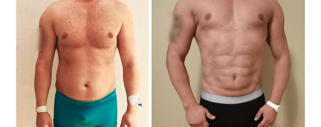 Vorher Nachher Fotos Plastische Chirurgie 7