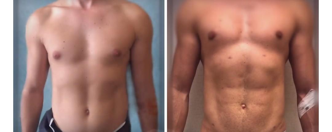 Vorher Nachher Fotos Plastische Chirurgie 8