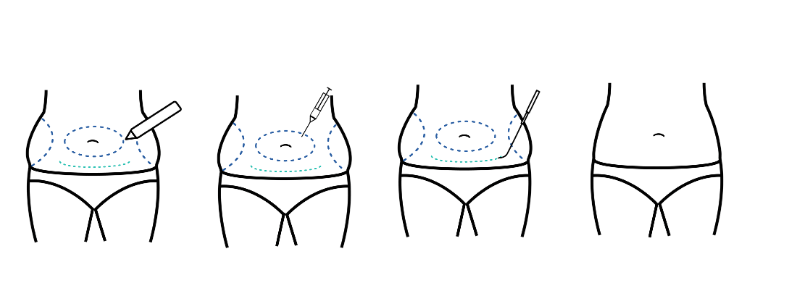 liposuction surgery process
