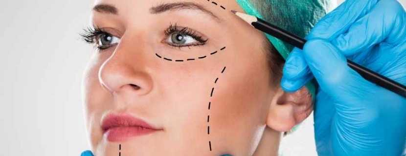 FaceLift Surgery in Turkey