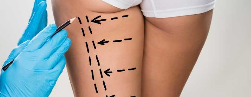 Thigh Lift Surgery in Turkey