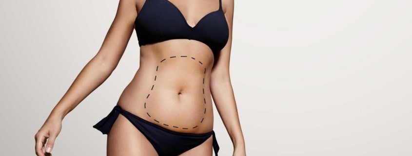 Tummy Tuck in Turkey Cost and Reviews