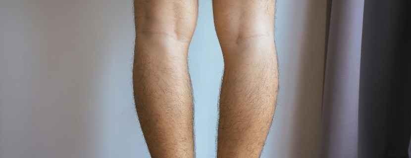 Çarpık Bacak Nasıl Anlaşılır_