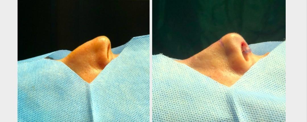 Vorher Nachher Fotos Plastische Chirurgie 2