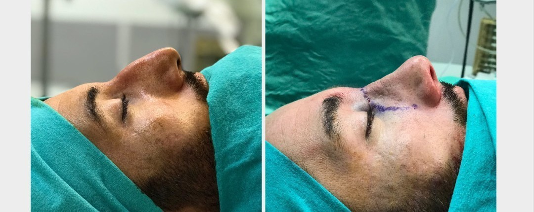 Vorher Nachher Fotos Plastische Chirurgie 3