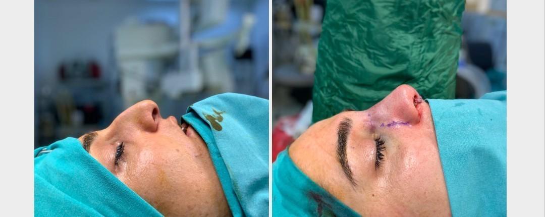 Vorher Nachher Fotos Plastische Chirurgie 4
