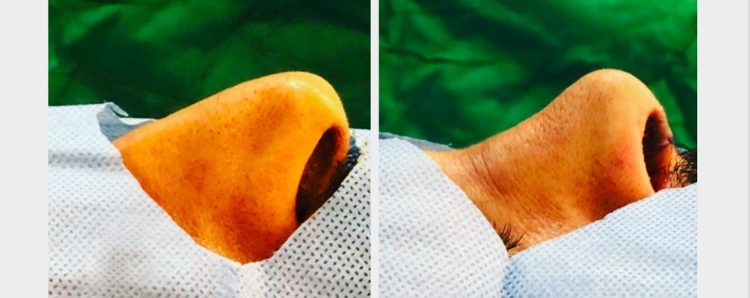 Vorher Nachher Fotos Plastische Chirurgie 5